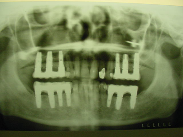 Dental-Implants-5
