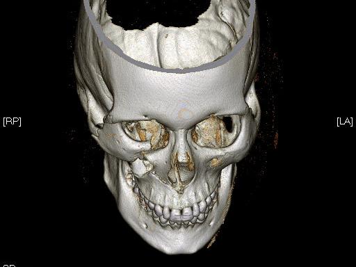 Facial-Trauma-1