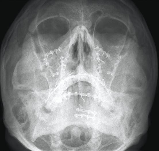 Facial-Trauma-5