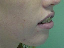 Orthognathic-Jaw-Surgery-1