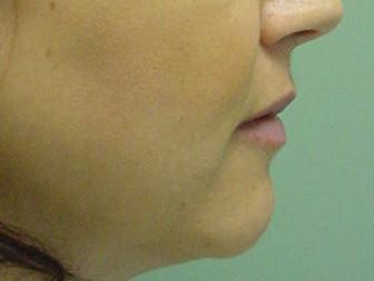 Orthognathic-Jaw-Surgery-12