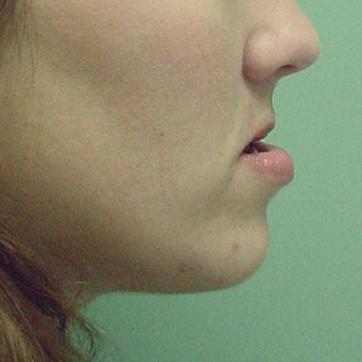 Orthognathic-Jaw-Surgery-13