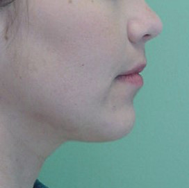 Orthognathic-Jaw-Surgery-14