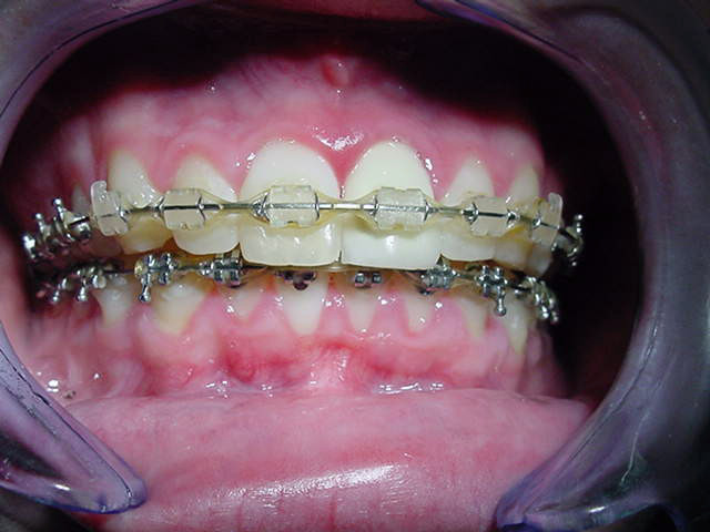 Orthognathic-Jaw-Surgery-2
