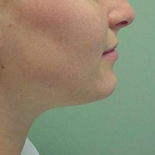 Orthognathic-Jaw-Surgery-20