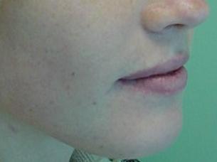 Orthognathic-Jaw-Surgery-4
