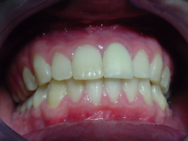 Orthognathic-Jaw-Surgery-5