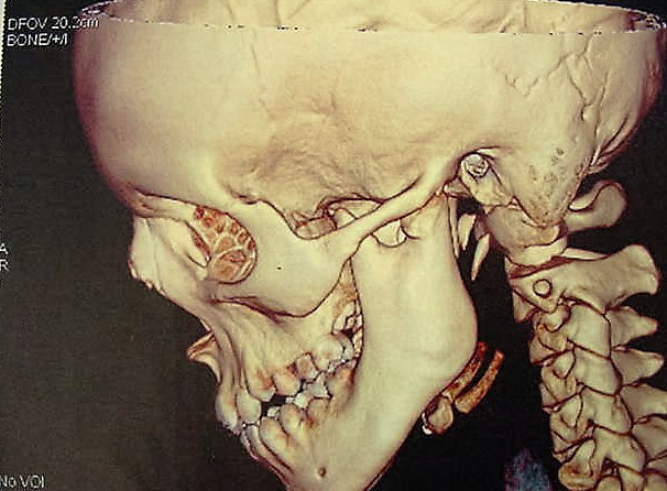 Temporomandibular-Joint-Disorders-1